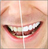 tooth-whitening-img